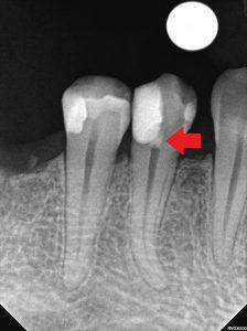 Regenerering av tannerven